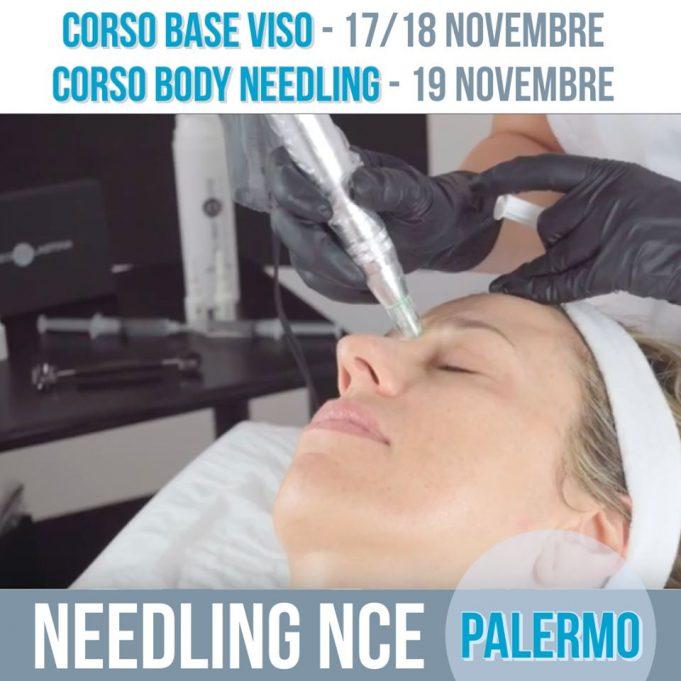 Corsi di Needling NCE